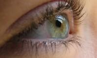 Allergies or Ocular Herpes?!