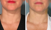 Belotero is the New Dermal Filler for Necks