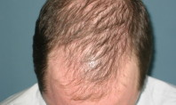 Could Curing Baldness Cause Impotence?