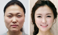 extreme plastic surgery Asia