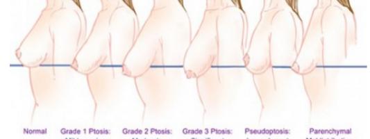 reasons boobs sag