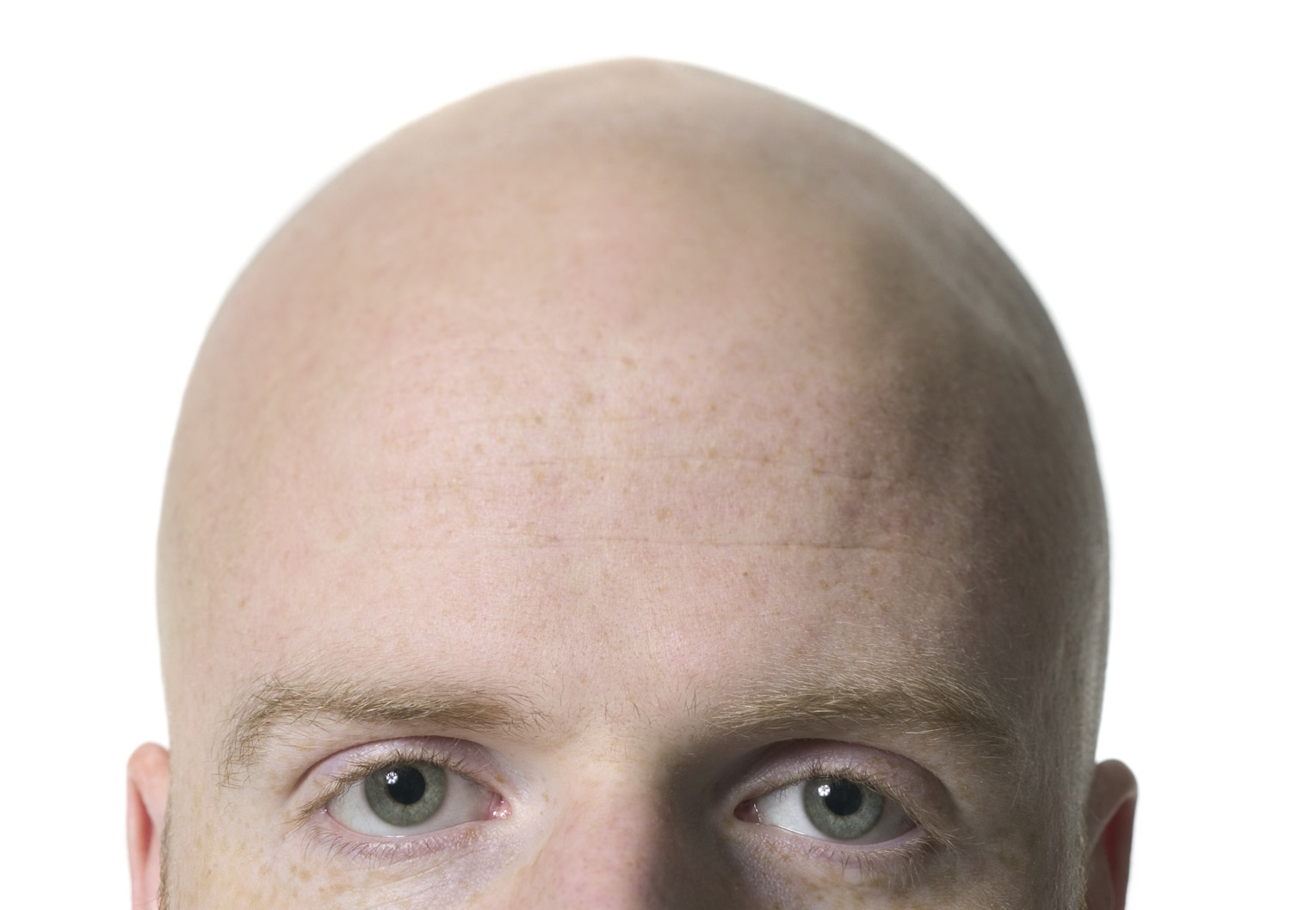 why does alopecia occur