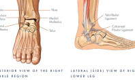 Chronic Ankle Pain: 10 Reasons Why
