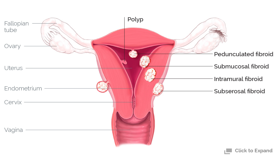 Uterine Polyp Removal: What to Expect | The Luxury Spot