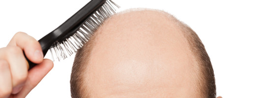 Causes of Alopecia Areata