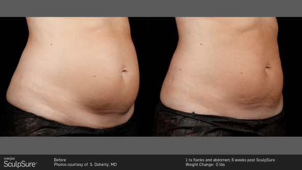 SculpSure before/after