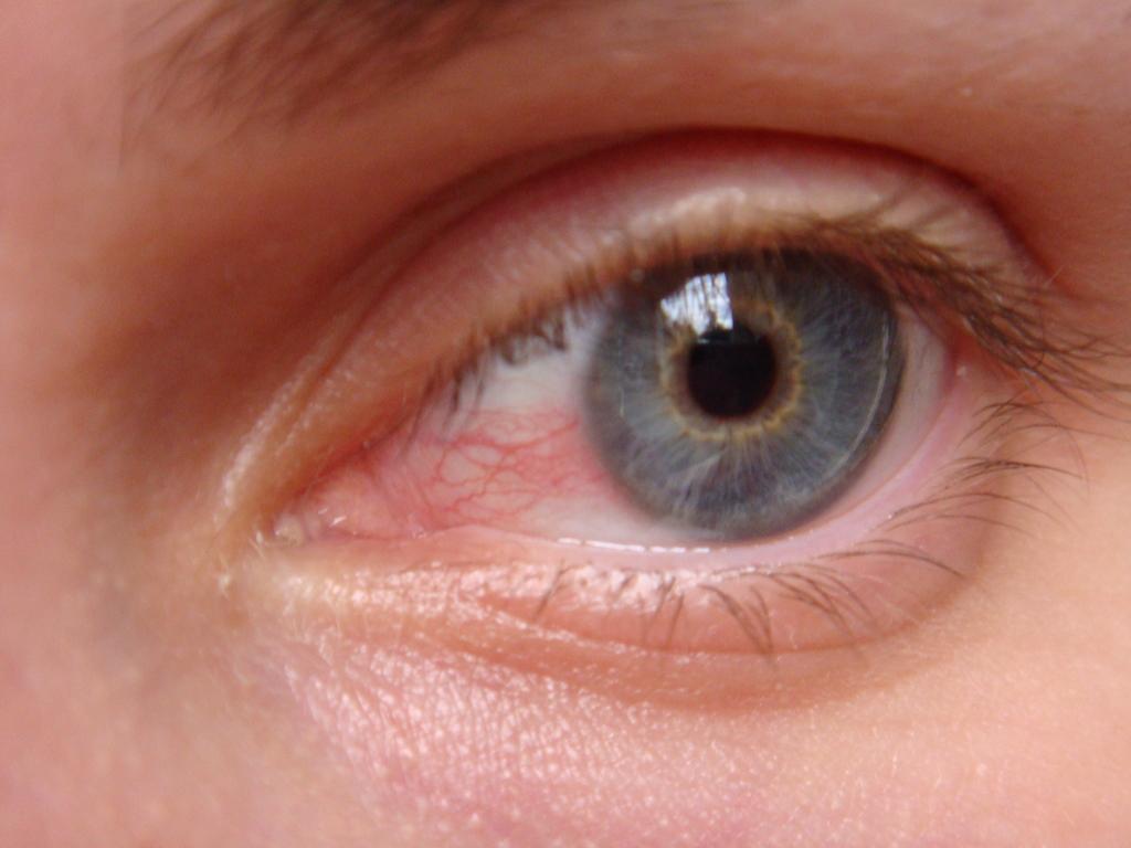 Как сделать белок глаз красными