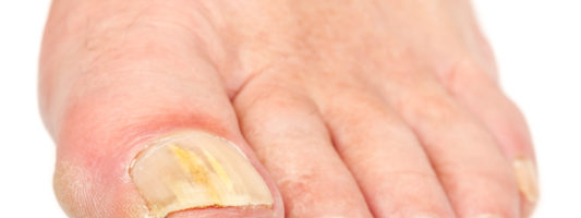 What a White Toenail Fungus Means (and how to treat it)