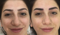 No, Jewish Girls Can't Try Microblading