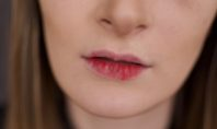 5 Surefire Ways to Prevent Chapped Lips
