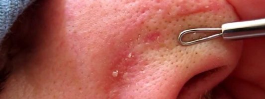 Your gross blackheads could be your next paycheck.