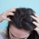 10 Causes and Treatments for Crusty Scalp