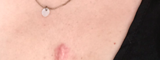 Keloid Scar Treatment At Home vs With A Dermatologist