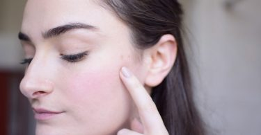 how to lighten pimple scars