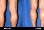 how much do calf implants cost
